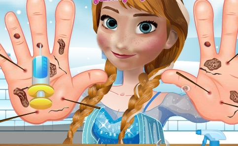 Play Anna Hand Doctor Game