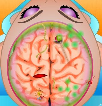 Play Elsa Brain Injury Game