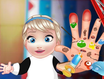 Play Baby Elsa Hand Doctor Game