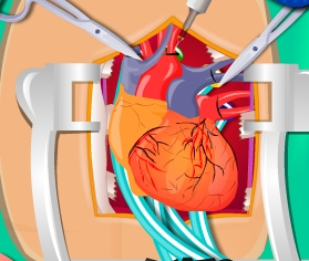 Play Heart Surgery Simulation Game