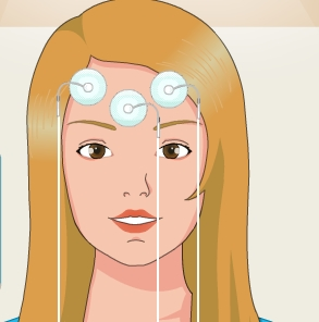 Play Epilepsy Surgery Game