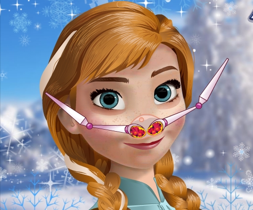 Play Anna Nose Doctor Game
