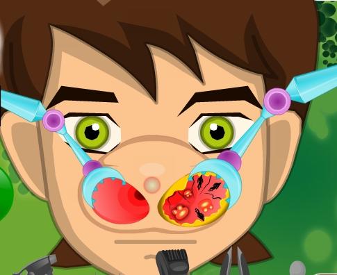 Play Ben 10 Nose Doctor Game