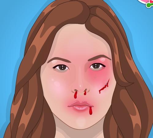 Play Ronda After Injury Game