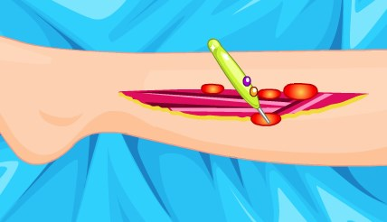 Play Barbie Foot Surgery Game
