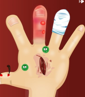 Play My hand doctor Game