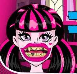 Play Draculaura Bad Teeth Game