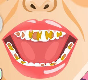 Play Baby Tooth Trouble Game