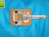 Play Operate now skin surgery Game