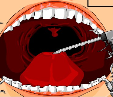 Play Dr Dentist and Exploding Teeth Game