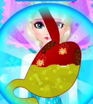 Play Elsa Abdominal Surgery Game