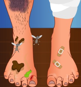 Play Smelly feet surgery Game