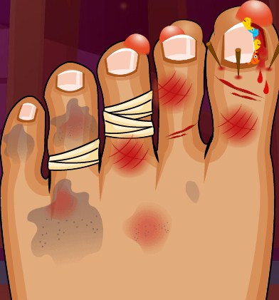 Play Monster Foot Doctor Game
