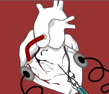 Play Heart Surgery Game