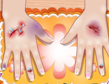 Play Little Nails Problems Game