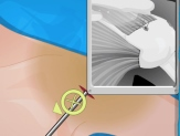 Play Operate Now Shoulder Surgery Game