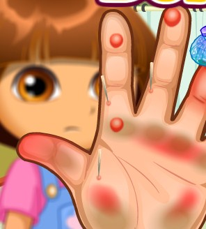 Play Dora Hand Doctor Caring Game