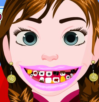 Play Frozen Anna Tooth Care Game